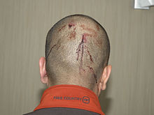 The back of Zimmerman's head at the police station.