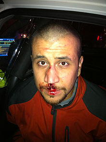 George Zimmerman with a bloody, swollen nose in the back seat of a police car on the night of the shooting.